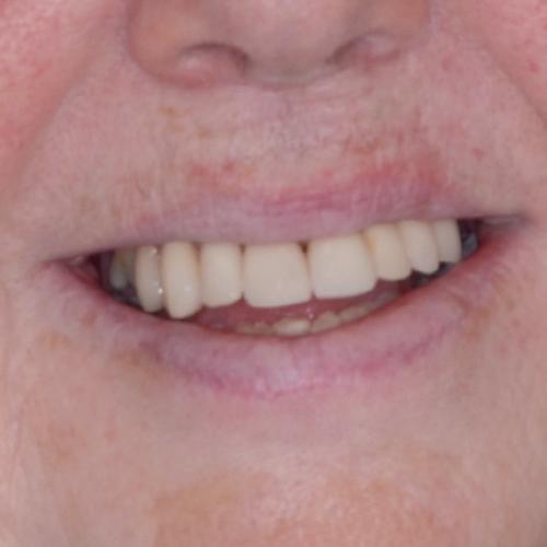 After_Smile_Makeover_Smiling