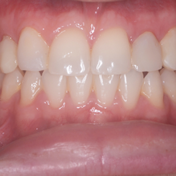 Invisalign_After_Case_Study_Square