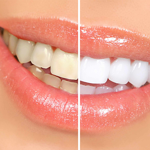 tooth_whitening_square